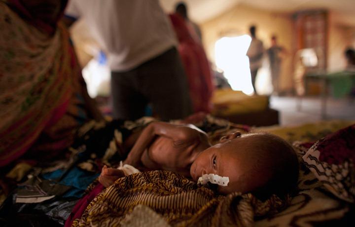 Недоедание детей в Сахеле, Африка